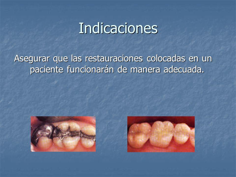 Indicaciones Asegurar que las restauraciones colocadas en un paciente funcionarán de manera adecuada.