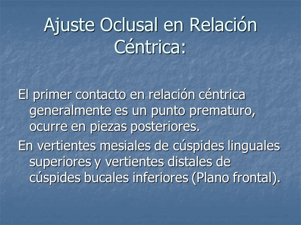 Ajuste Oclusal en Relación Céntrica: