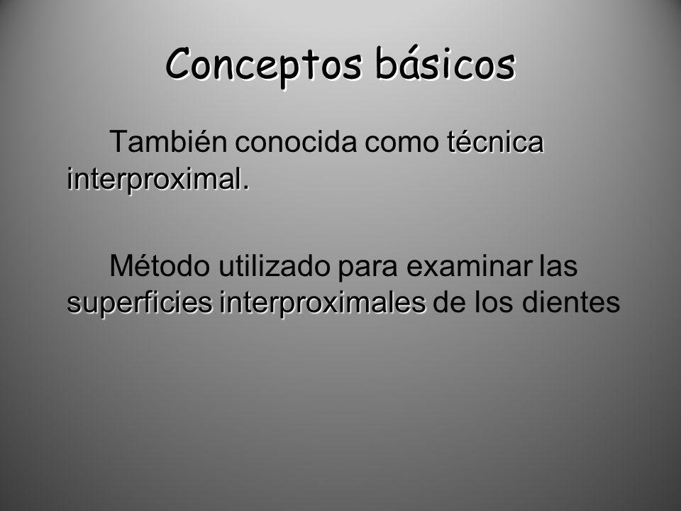 Conceptos básicos También conocida como técnica interproximal.