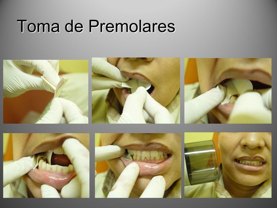 Toma de Premolares