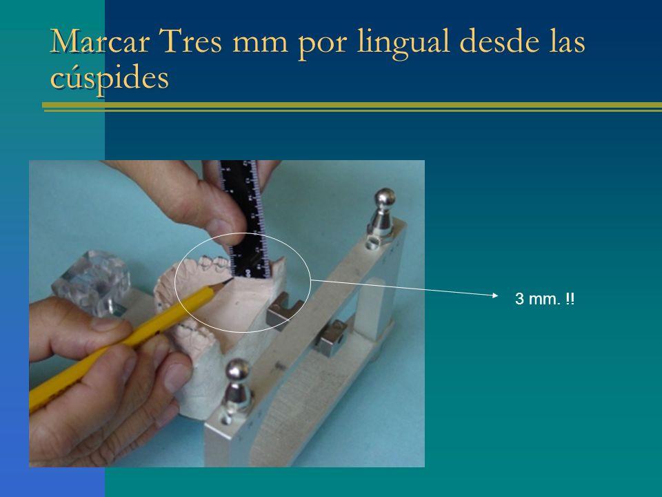 Marcar Tres mm por lingual desde las cúspides