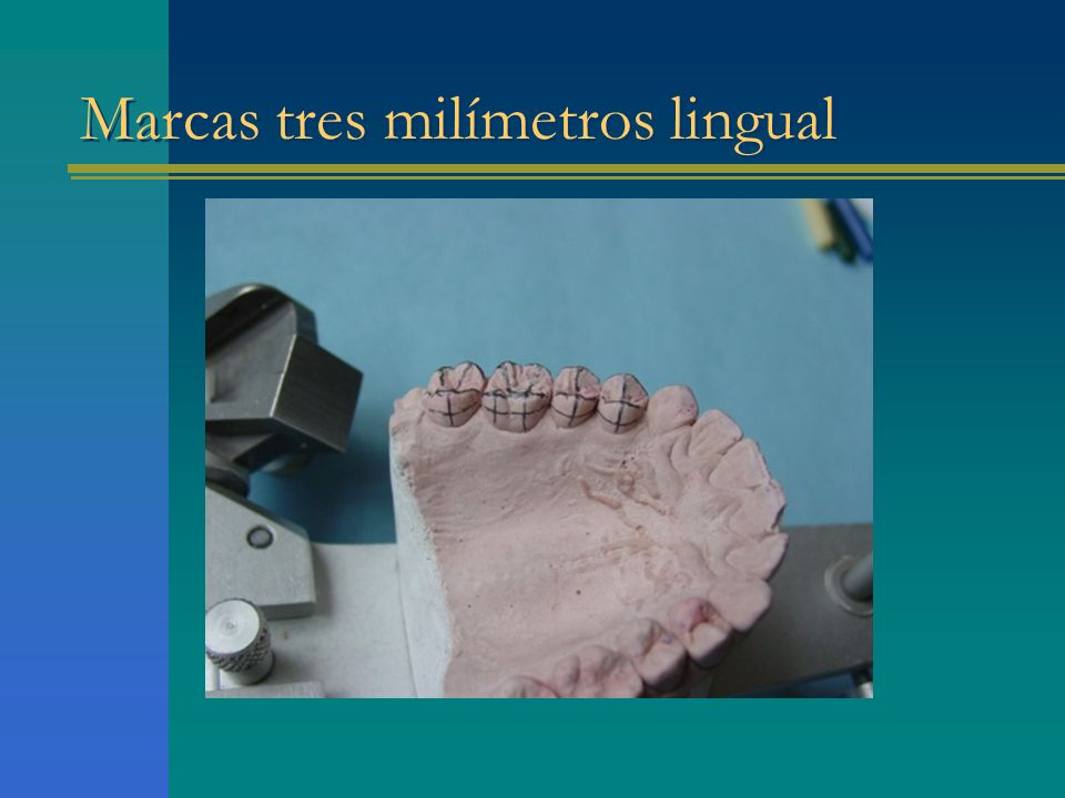 Marcas tres milímetros lingual