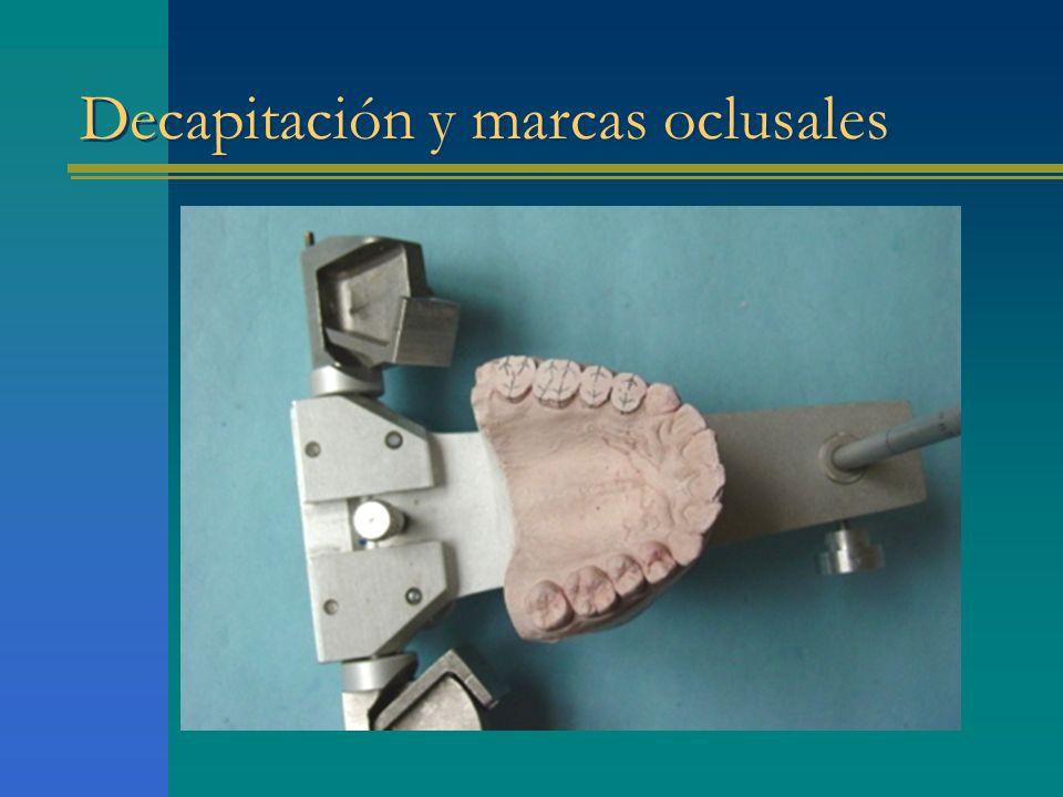 Decapitación y marcas oclusales