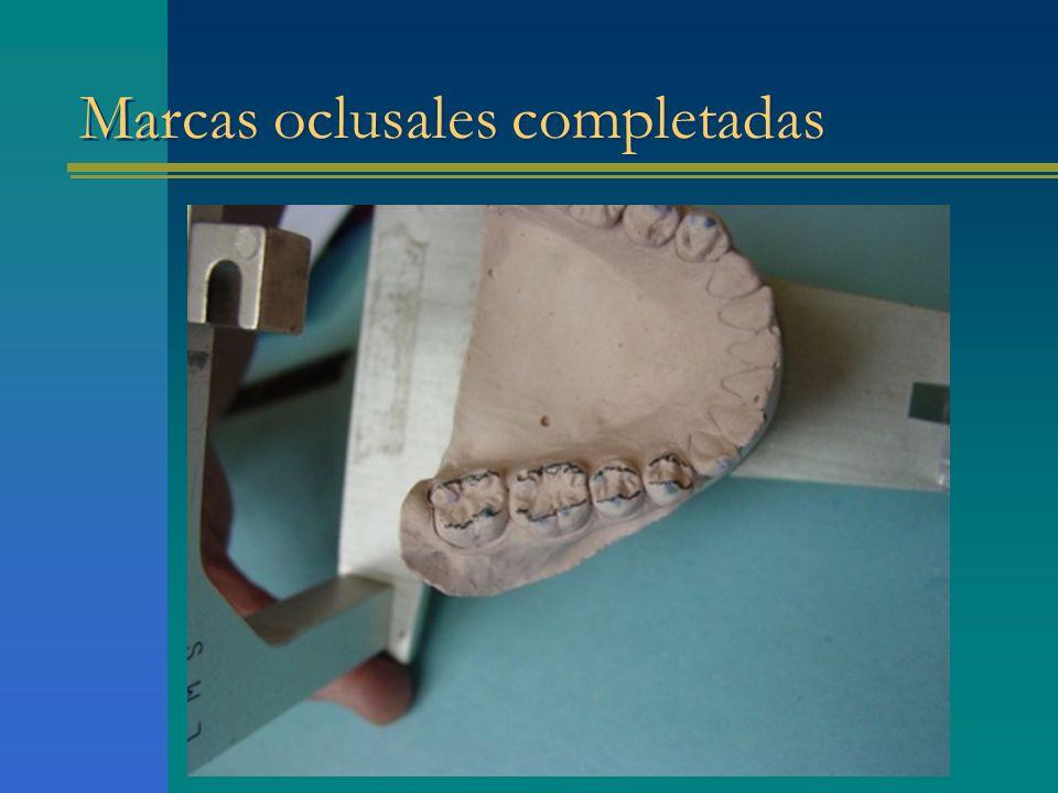 Marcas oclusales completadas