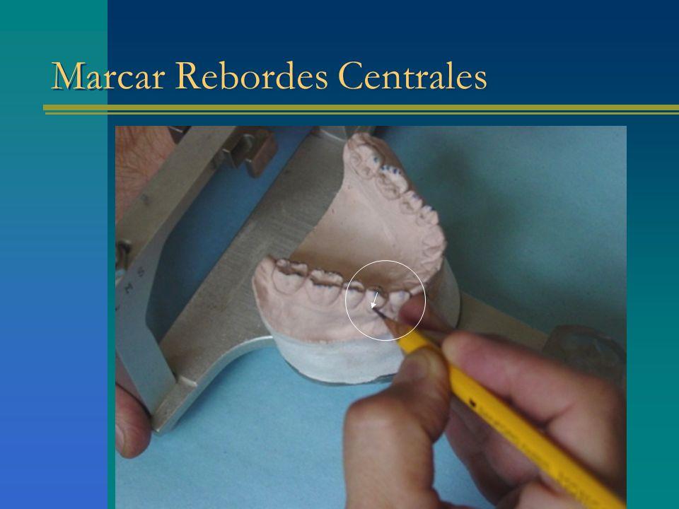 Marcar Rebordes Centrales