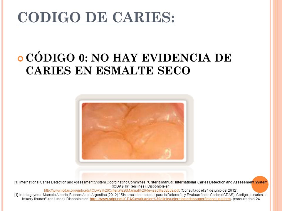 CODIGO DE CARIES: CÓDIGO 0: NO HAY EVIDENCIA DE CARIES EN ESMALTE SECO