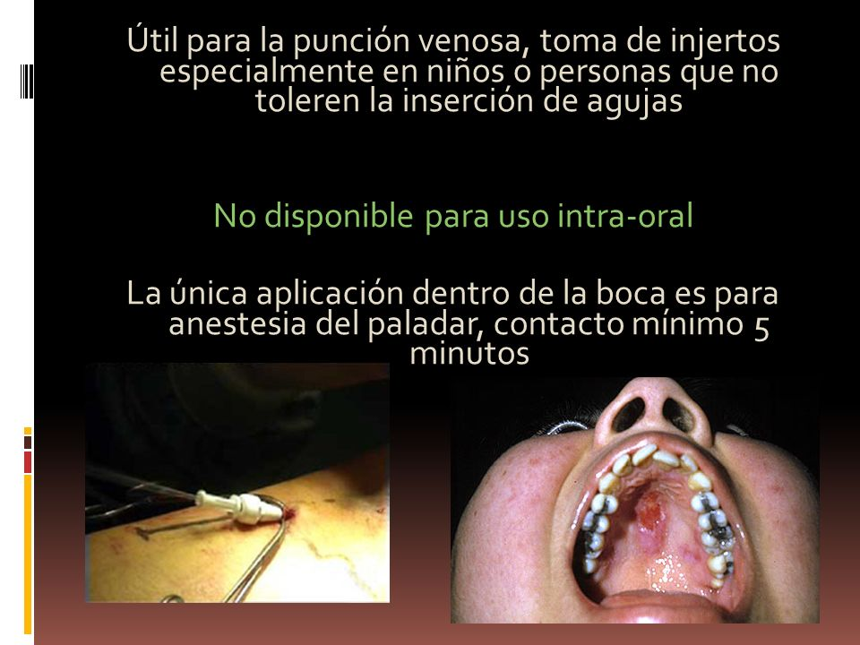 No disponible para uso intra-oral