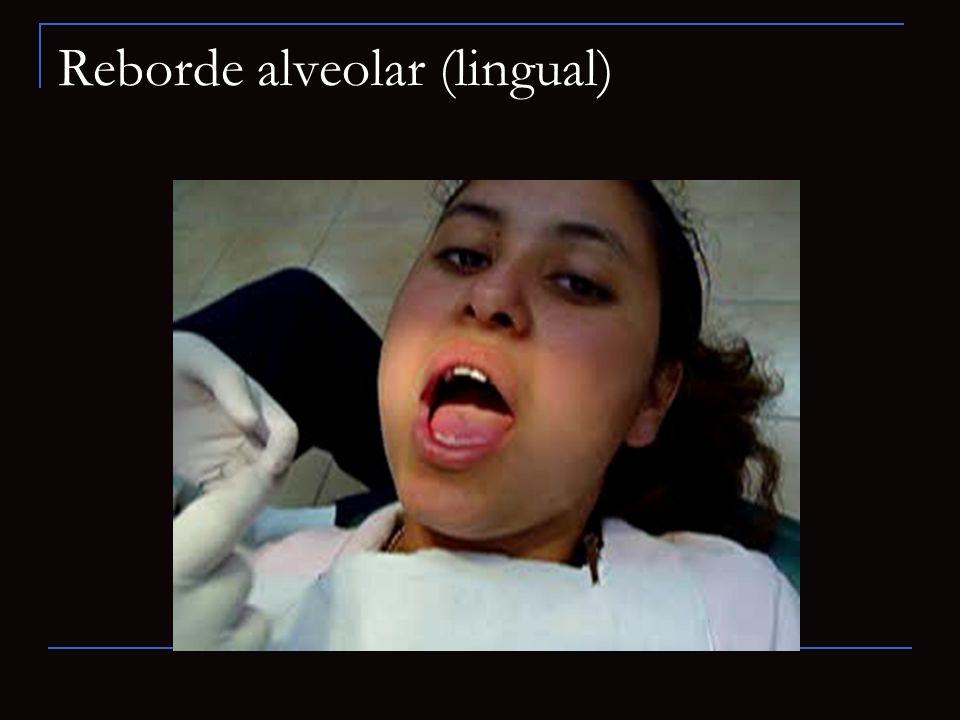 Reborde alveolar (lingual)