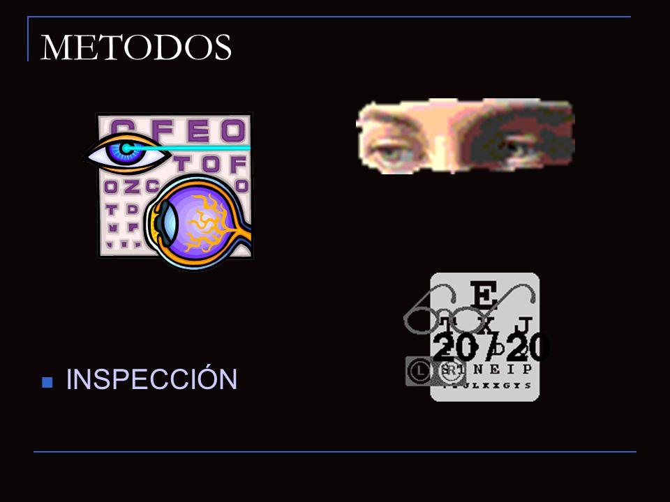 METODOS INSPECCIÓN