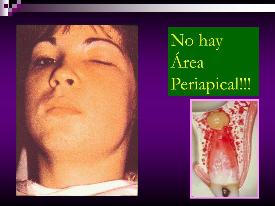 No hay Área Periapical!!!