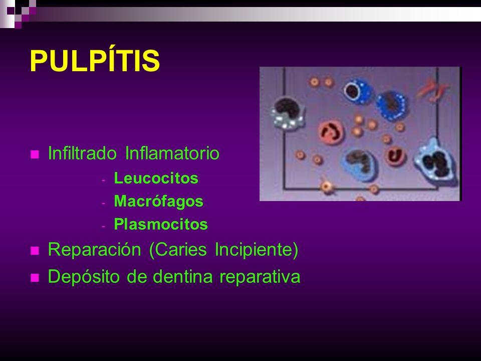 PULPÍTIS Infiltrado Inflamatorio Reparación (Caries Incipiente)