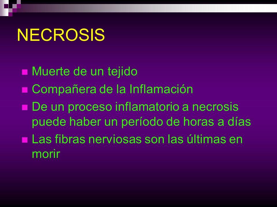 NECROSIS Muerte de un tejido Compañera de la Inflamación