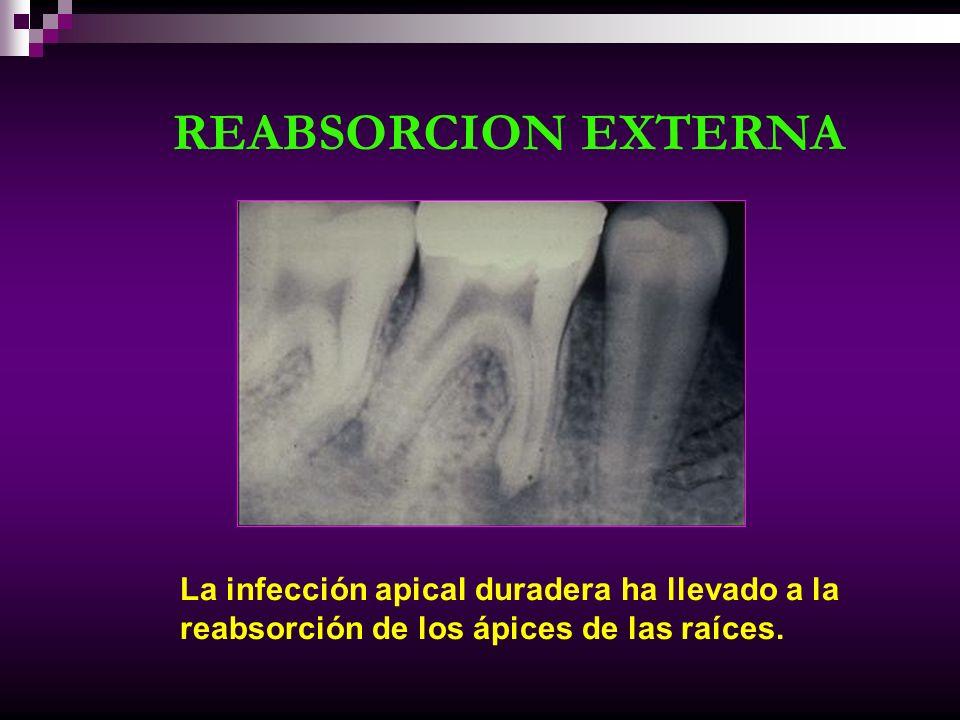 REABSORCION EXTERNA La infección apical duradera ha llevado a la reabsorción de los ápices de las raíces.