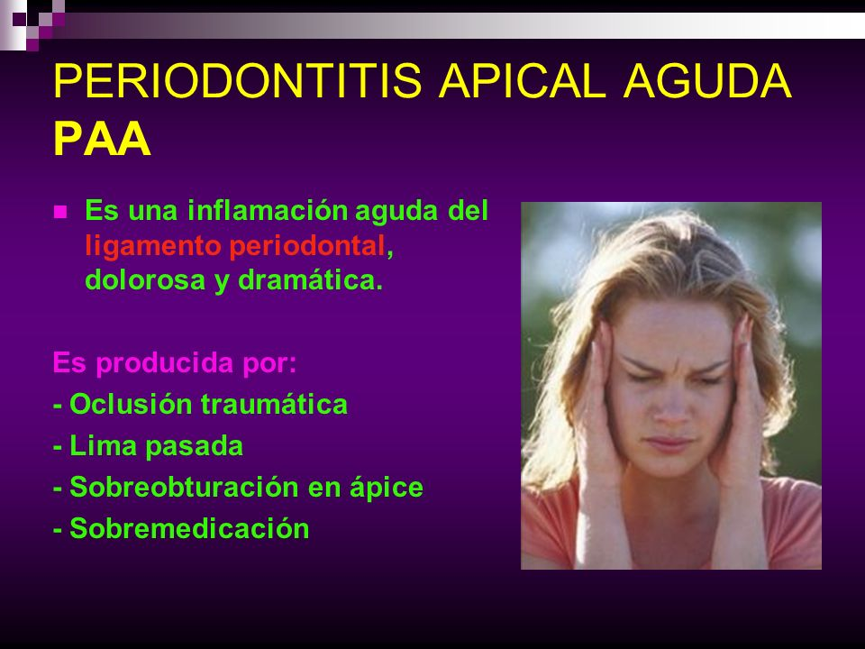 PERIODONTITIS APICAL AGUDA PAA