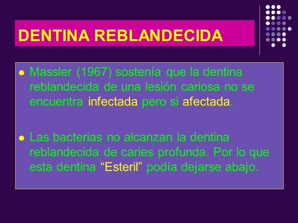 DENTINA REBLANDECIDA Massler (1967) sostenía que la dentina reblandecida de una lesión cariosa no se encuentra infectada pero si afectada.