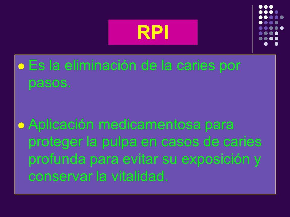 RPI Es la eliminación de la caries por pasos.
