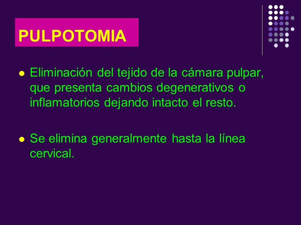 PULPOTOMIA Eliminación del tejido de la cámara pulpar, que presenta cambios degenerativos o inflamatorios dejando intacto el resto.
