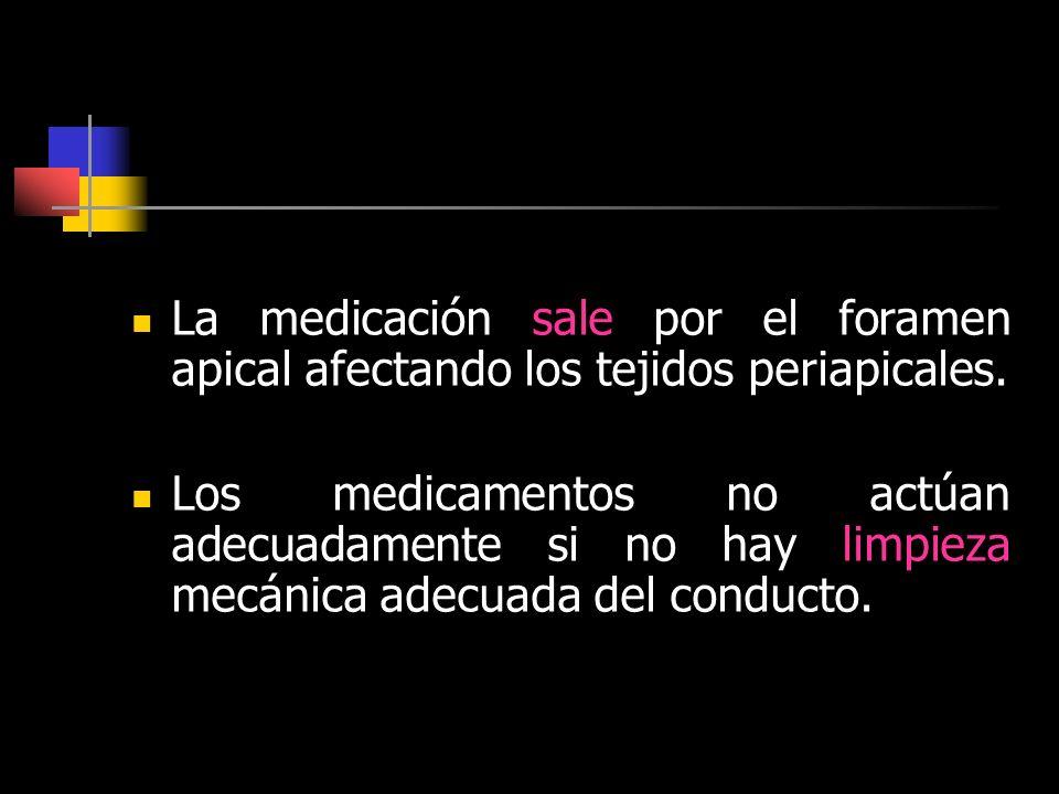 La medicación sale por el foramen apical afectando los tejidos periapicales.