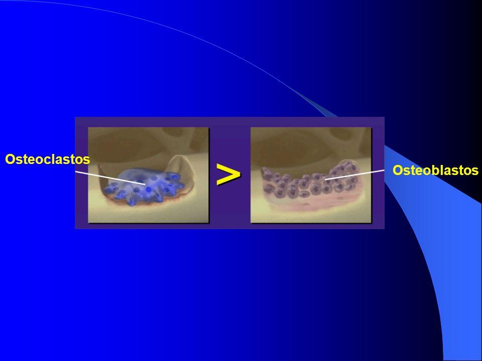 Osteoclastos Osteoblastos