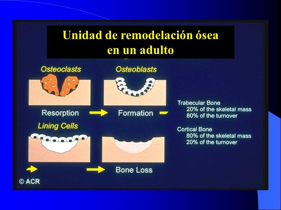 Unidad de remodelación ósea