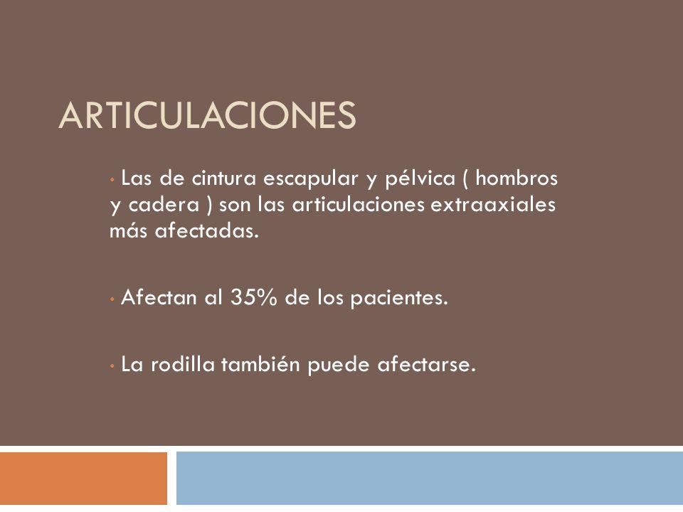 Articulaciones Las de cintura escapular y pélvica ( hombros y cadera ) son las articulaciones extraaxiales más afectadas.