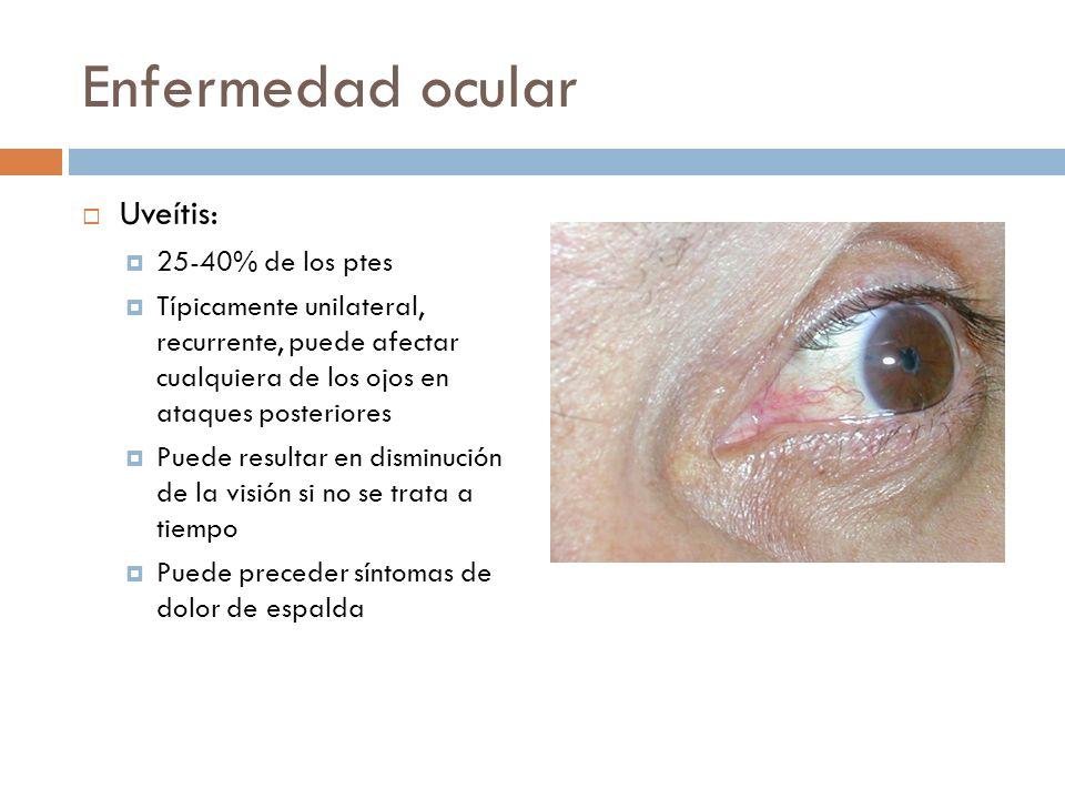 Enfermedad ocular Uveítis: 25-40% de los ptes