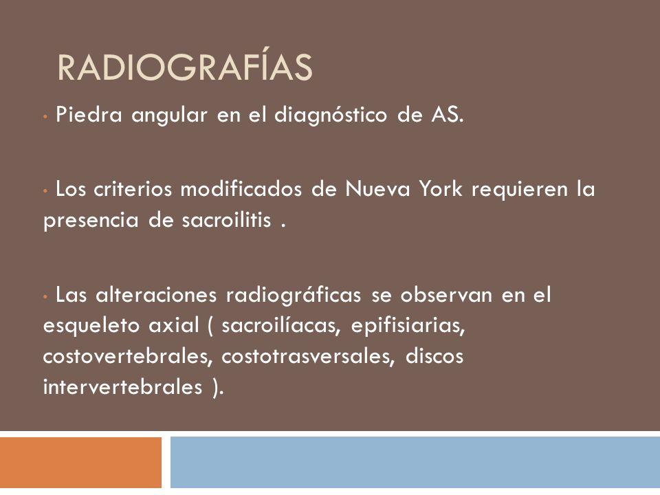 Radiografías Piedra angular en el diagnóstico de AS.