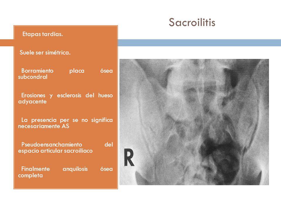Sacroilitis Suele ser simétrica. Borramiento placa ósea subcondral