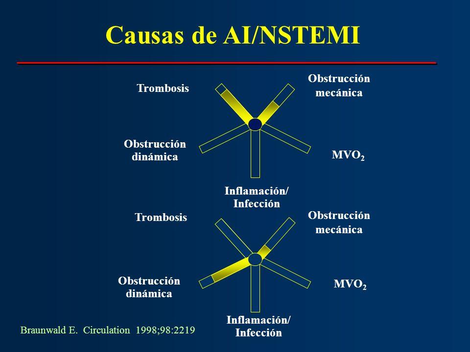 Causas de AI/NSTEMI Obstrucción Trombosis mecánica Obstrucción