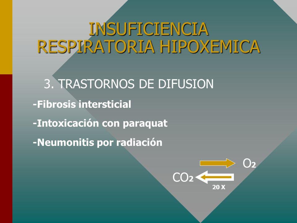 INSUFICIENCIA RESPIRATORIA HIPOXEMICA