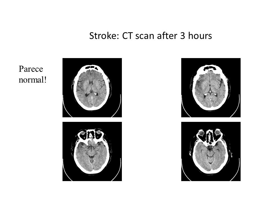 Stroke: CT scan after 3 hours