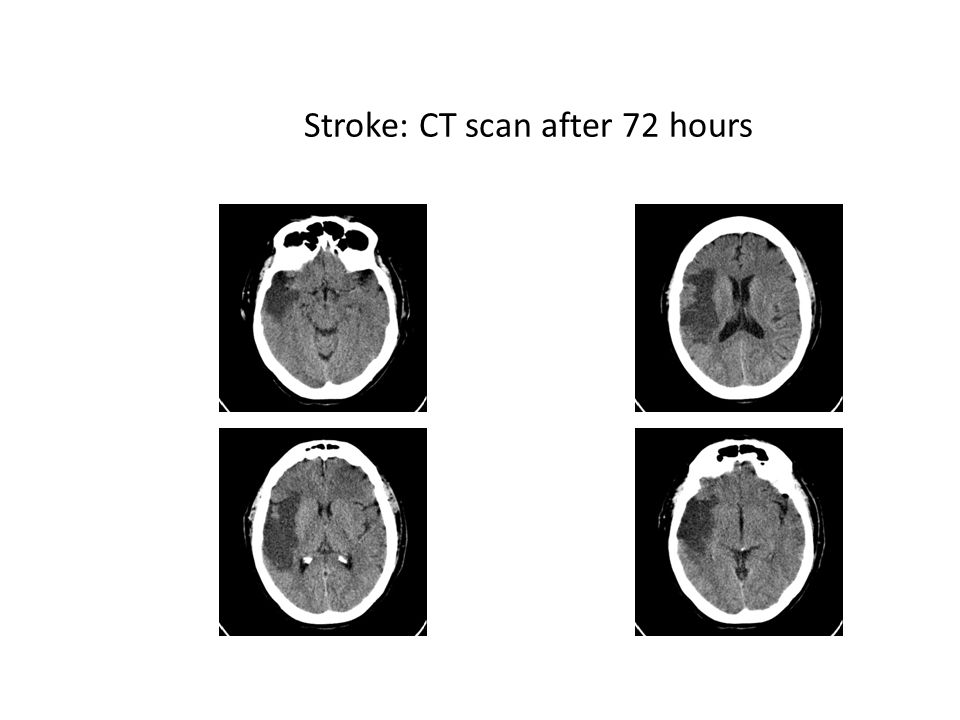 Stroke: CT scan after 72 hours