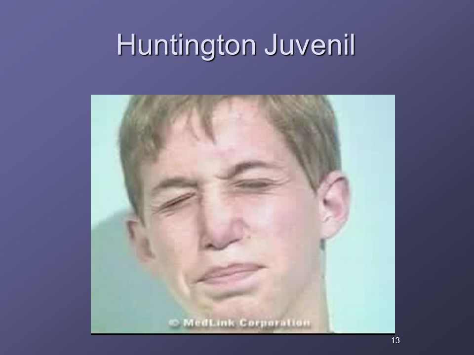 Huntington Juvenil