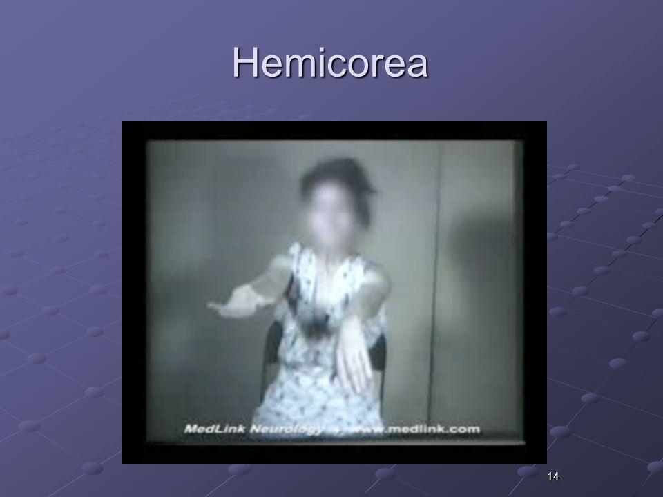 Hemicorea 14