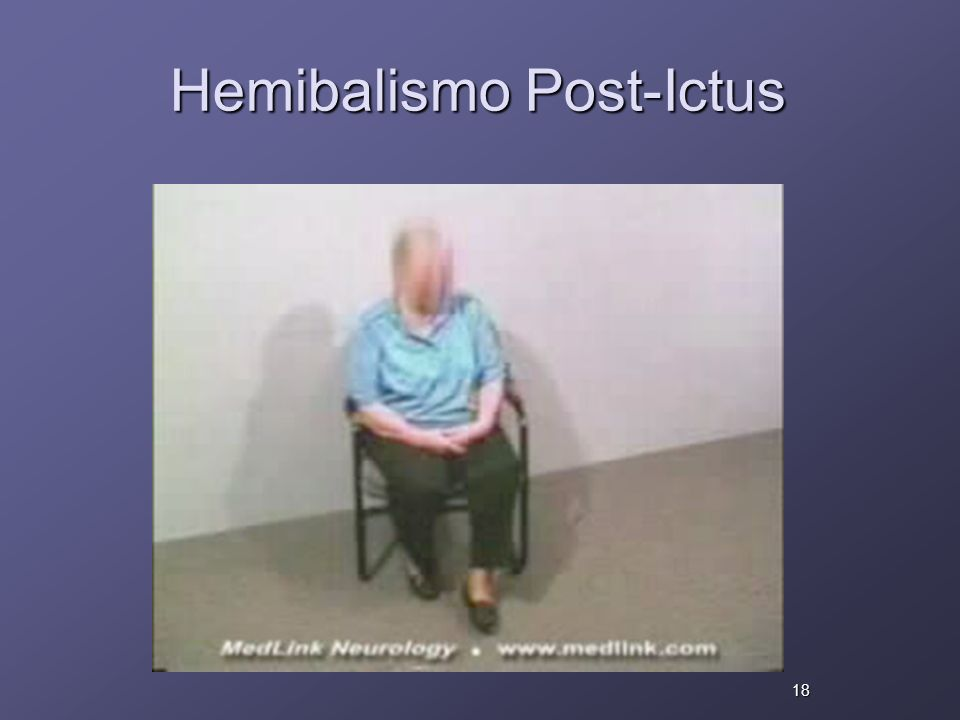 Hemibalismo Post-Ictus