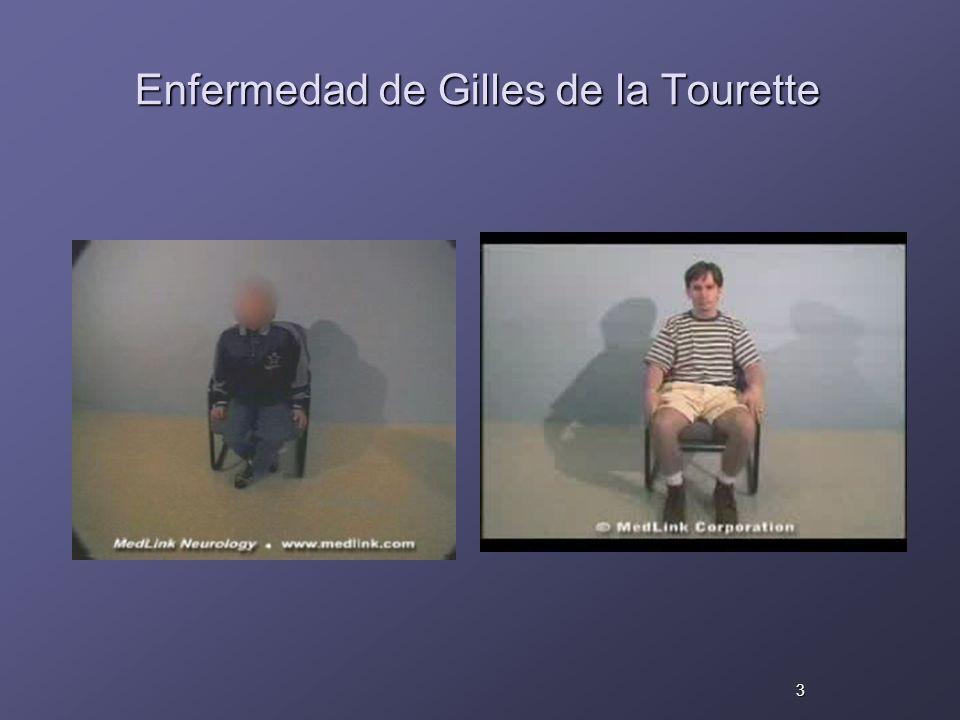 Enfermedad de Gilles de la Tourette