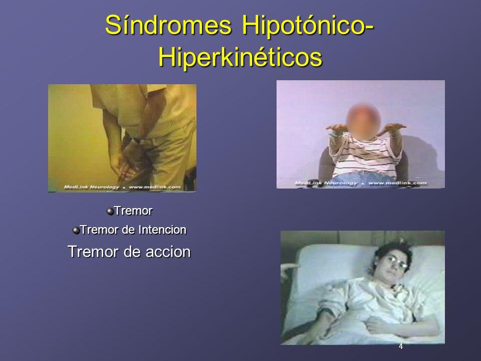 Síndromes Hipotónico-Hiperkinéticos