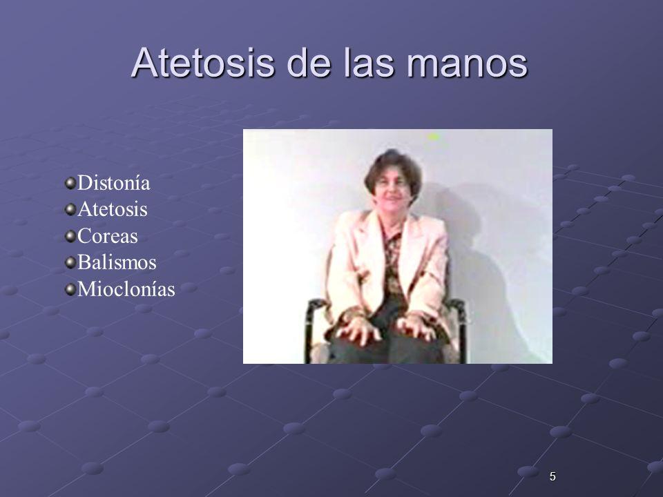 Atetosis de las manos Distonía Atetosis Coreas Balismos Mioclonías 5