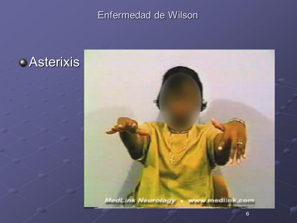 Enfermedad de Wilson Asterixis 6