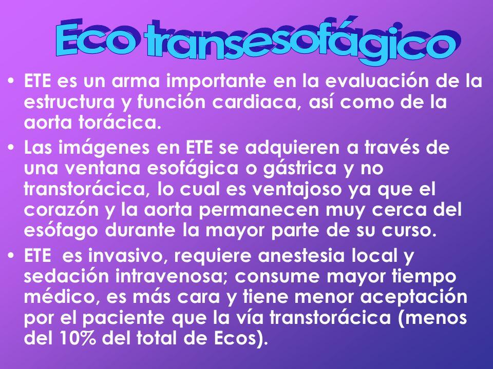 Eco transesofágico ETE es un arma importante en la evaluación de la estructura y función cardiaca, así como de la aorta torácica.