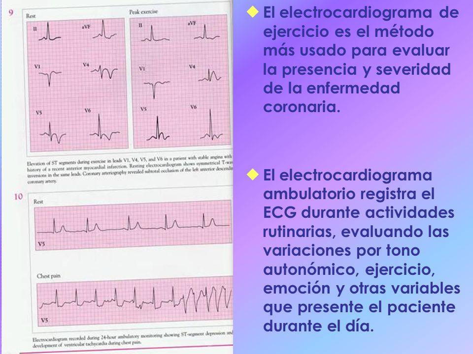 El electrocardiograma de ejercicio es el método más usado para evaluar la presencia y severidad de la enfermedad coronaria.