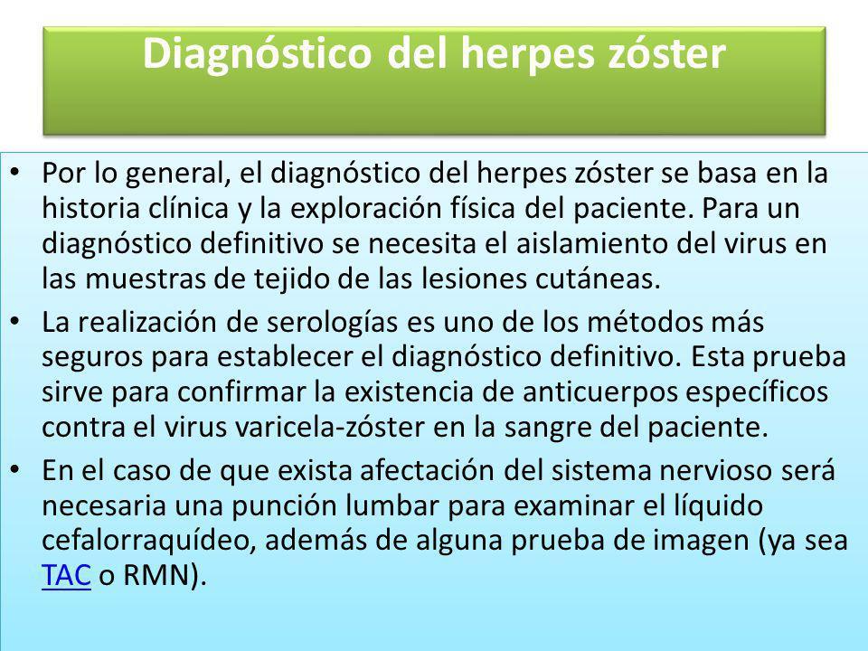 Diagnóstico del herpes zóster