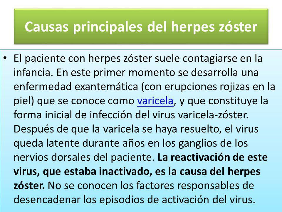 Causas principales del herpes zóster