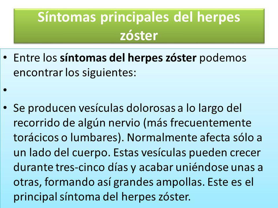 Síntomas principales del herpes zóster