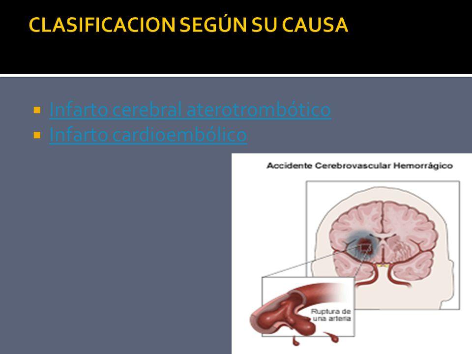CLASIFICACION SEGÚN SU CAUSA