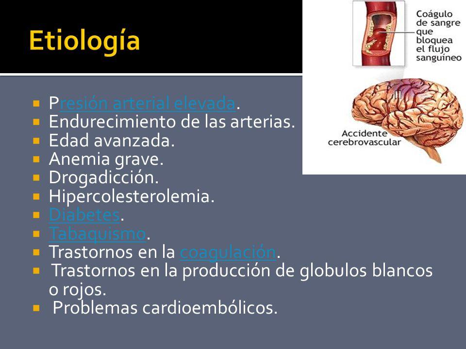 Etiología Presión arterial elevada. Endurecimiento de las arterias.