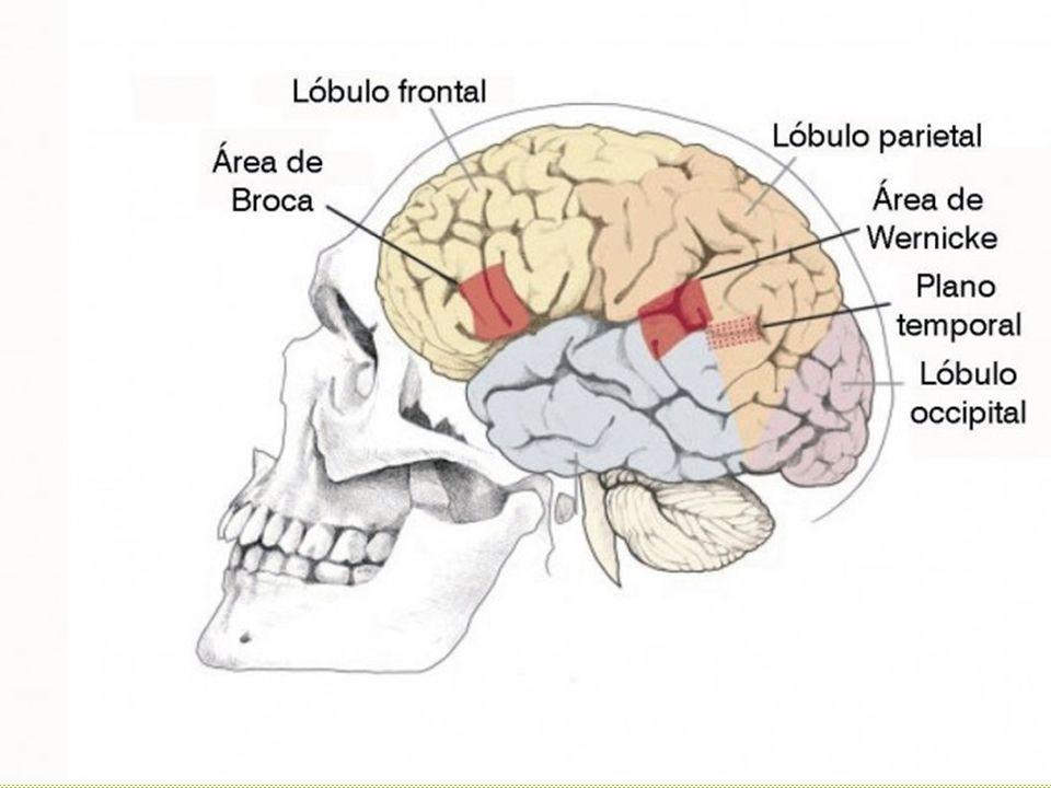 Normalmente, el plano temporal del cerebro es asimétrico, pero con estudios de neuroimagen, se ha observado que en personas con TEL hay una simetría en el plano temporal de ambos hemisferios, lo que evidencia un volumen disminuido del lado izquierdo respecto al derecho.