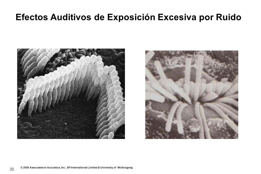 Efectos Auditivos de Exposición Excesiva por Ruido