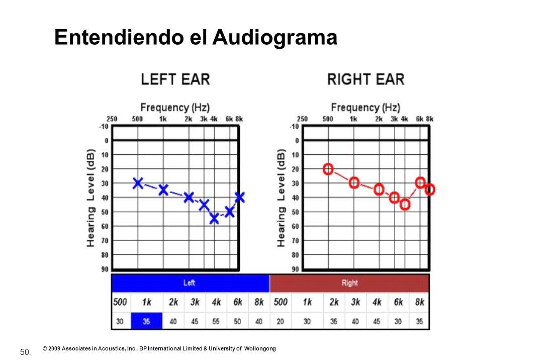 Entendiendo el Audiograma