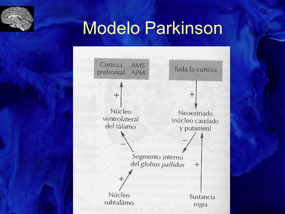 Modelo Parkinson